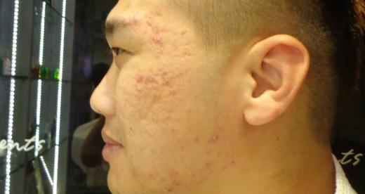 Left face before detox