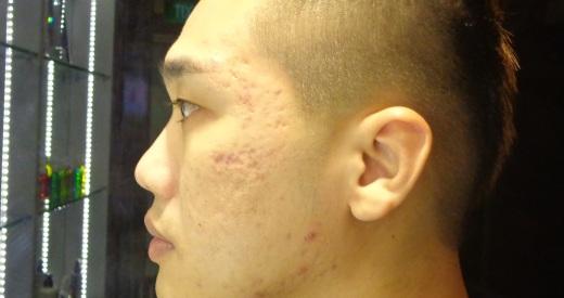 Left face after detox